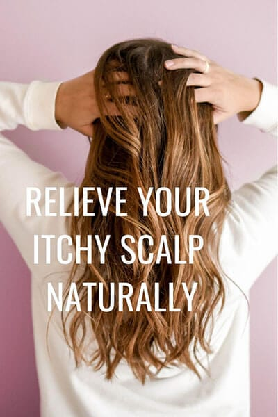Natural Beauty- Itchy Scalp
