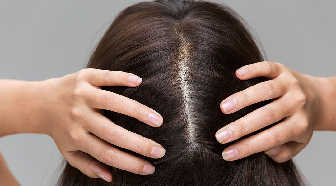 How to remove itchy, flaky patches on the scalp