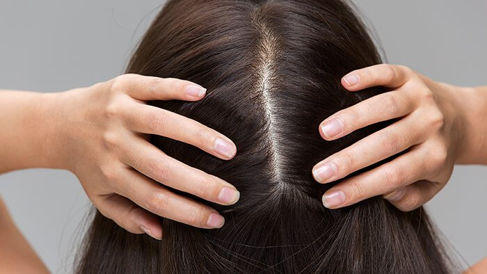 How to remove itchy, flaky patches on scalp